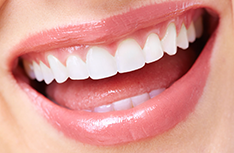 Cosmetic Dentistry | Samuelson & White Family and Cosmetic Dentistry
